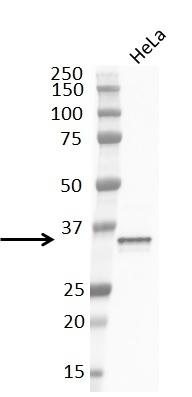 Anti Cyclin D1 Antibody, clone RM241 thumbnail image 5