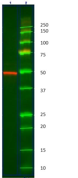 Anti Human Cytokeratin 14 Antibody, clone AbD03759 thumbnail image 1