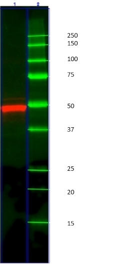 Anti Human Cytokeratin 14 Antibody, clone AbD03759 thumbnail image 2