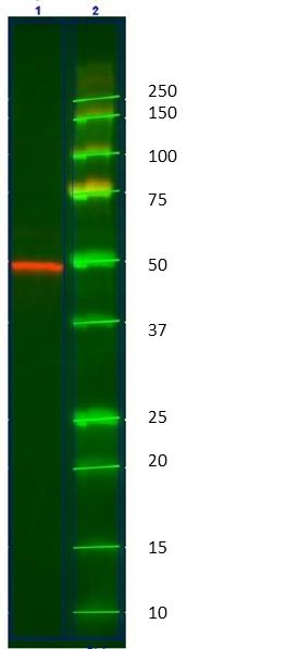Anti Cytokeratin 14 Antibody, clone AbD03759 (PrecisionAb Monoclonal Antibody) thumbnail image 2
