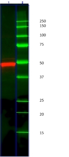 Anti Cytokeratin 14 Antibody, clone AbD03759 (PrecisionAb Monoclonal Antibody) thumbnail image 3