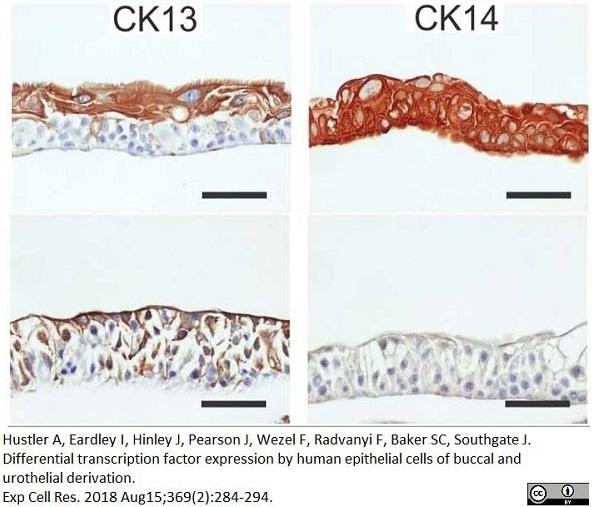 Anti Human Cytokeratin 14 Antibody, clone LL002 thumbnail image 6