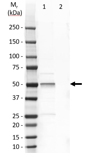 Anti Human Cytokeratin 14 Antibody, clone LL002 thumbnail image 7