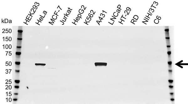 Anti Cytokeratin 14 Antibody (PrecisionAb Monoclonal Antibody) thumbnail image 2