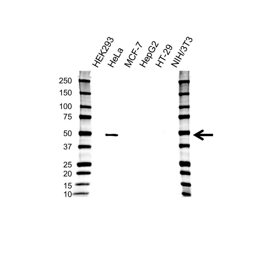 Anti Cytokeratin 17 Antibody (PrecisionAb™ Monoclonal Antibody) gallery image 1