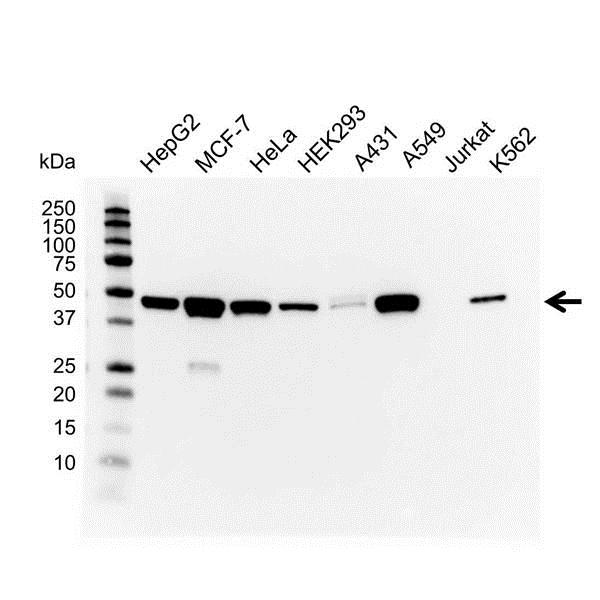 Anti Cytokeratin 18/19 Antibody (PrecisionAb Monoclonal Antibody) gallery image 1