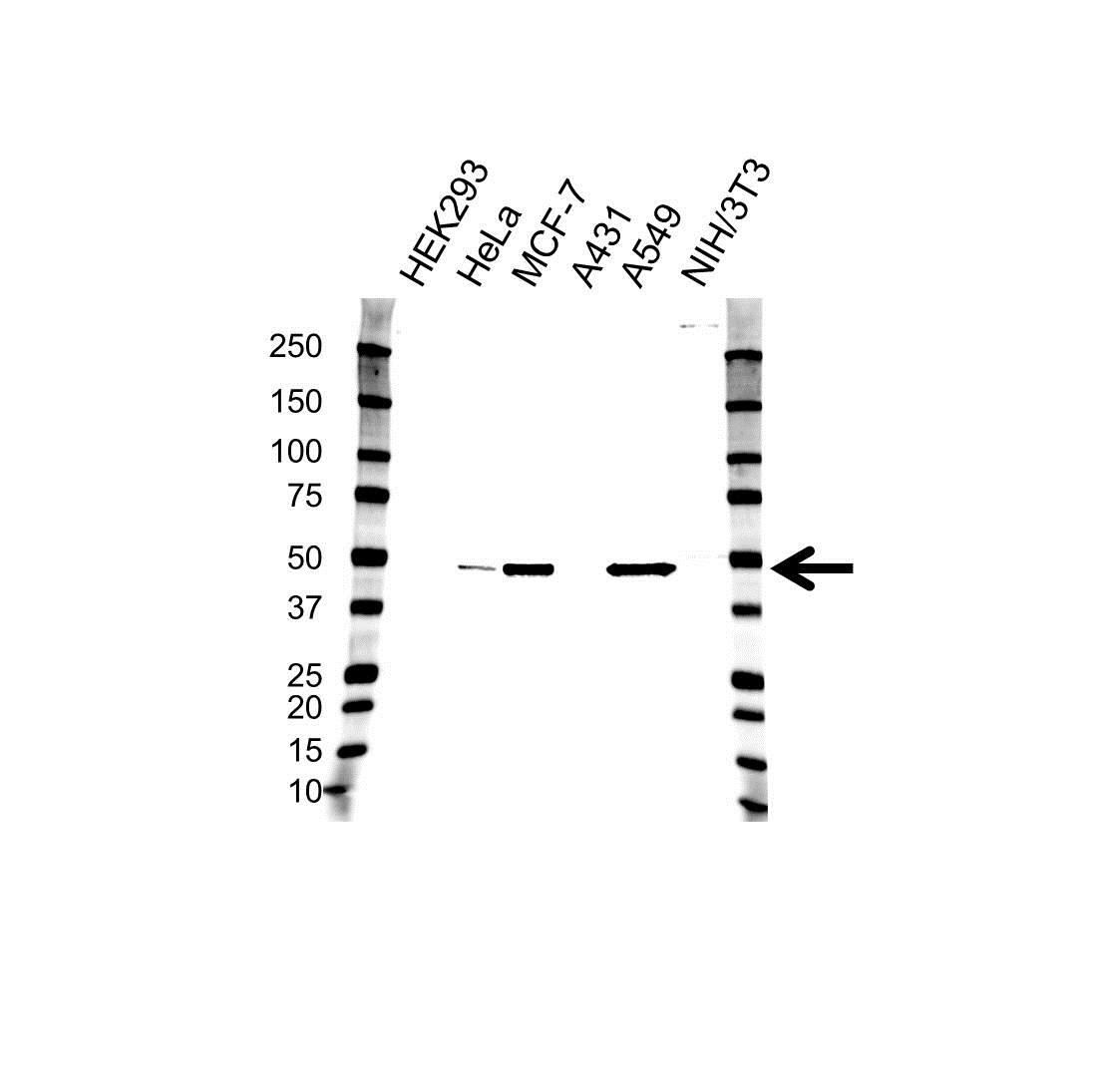 Anti Cytokeratin 18 Antibody (PrecisionAb Monoclonal Antibody) gallery image 1
