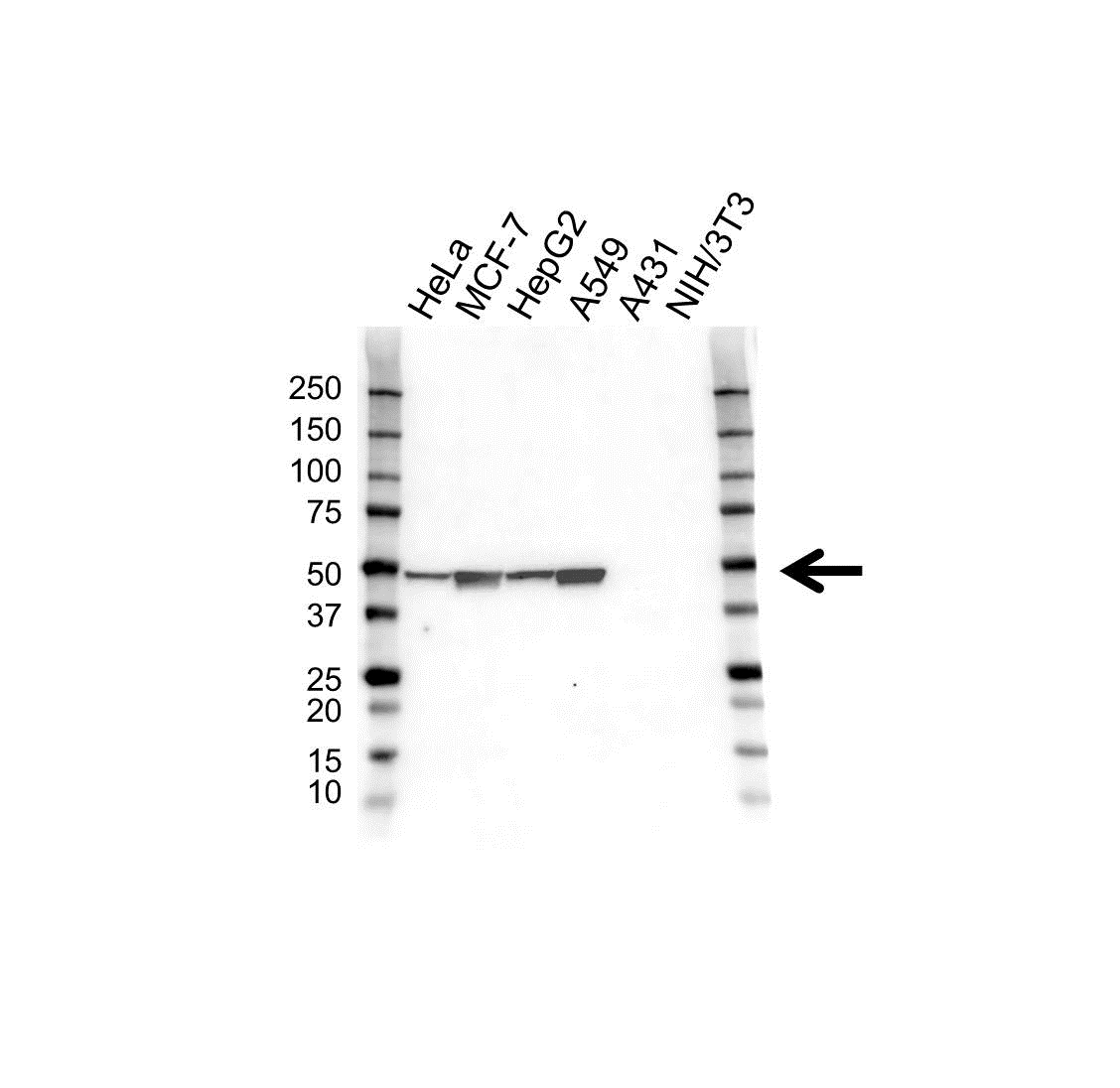Anti Cytokeratin 18 Antibody (PrecisionAb™ Monoclonal Antibody) gallery image 1