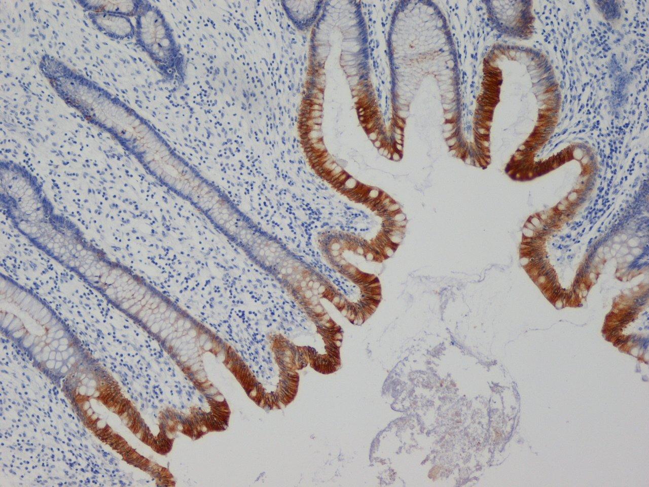 Anti Human Cytokeratin 19 Antibody, clone A53-B/A2 thumbnail image 1