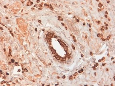 Anti Human Cytokeratin 19 Antibody, clone BA17 thumbnail image 2