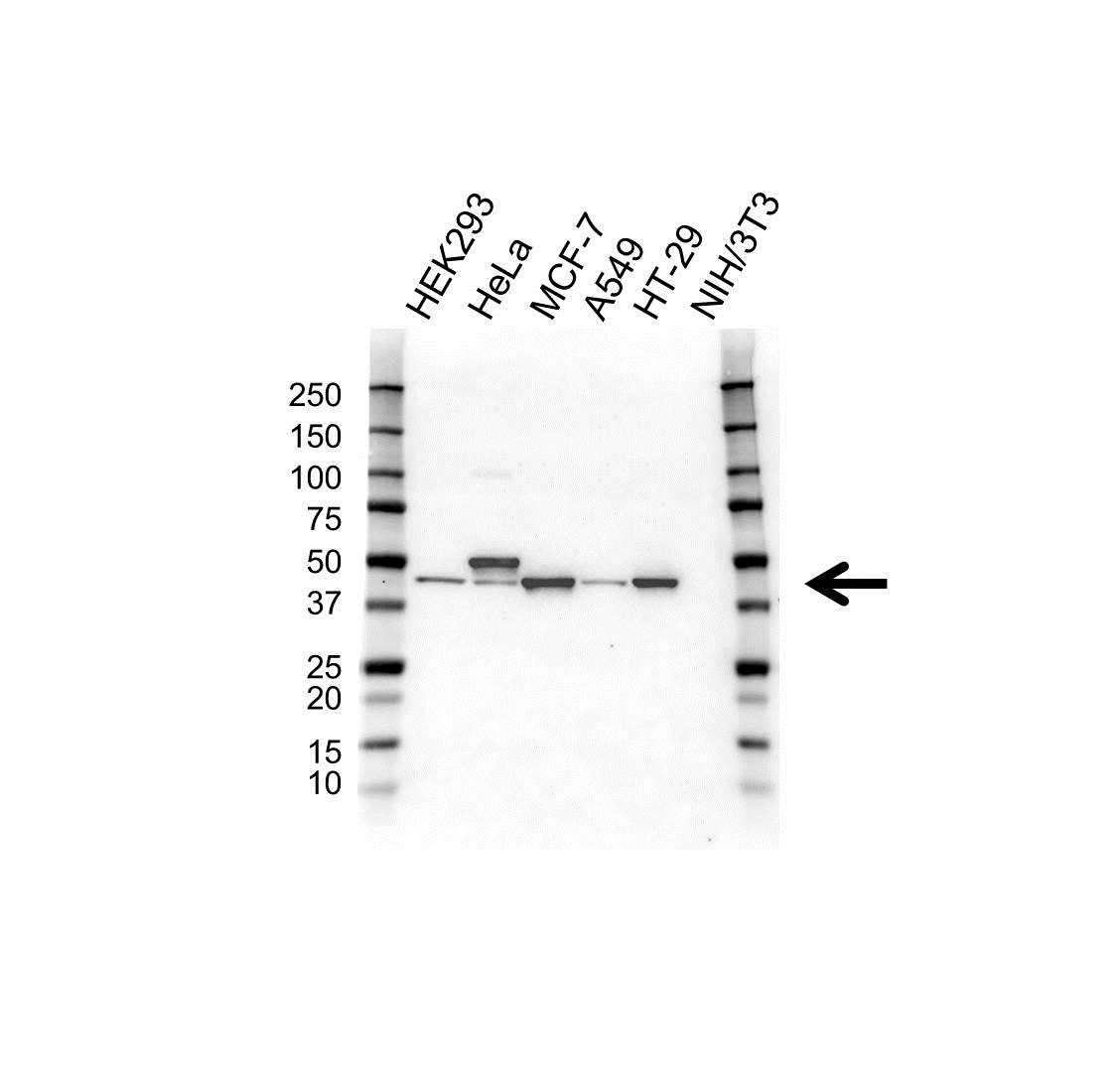 Anti Cytokeratin 20 Antibody (PrecisionAb™ Monoclonal Antibody) gallery image 1