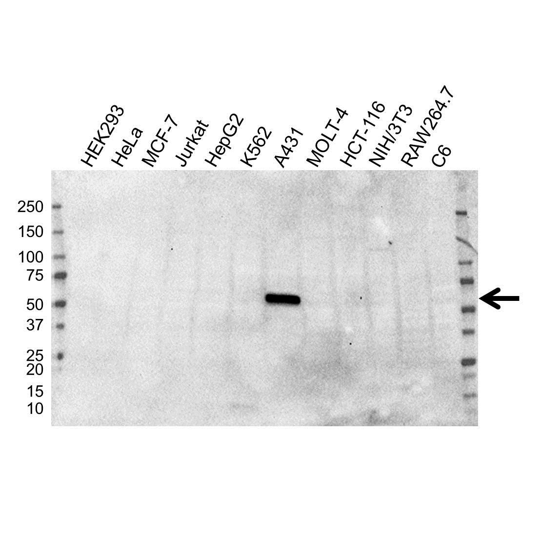 Anti Cytokeratin 5 Antibody, clone OTI1C7 (PrecisionAb™ Monoclonal Antibody) gallery image 1