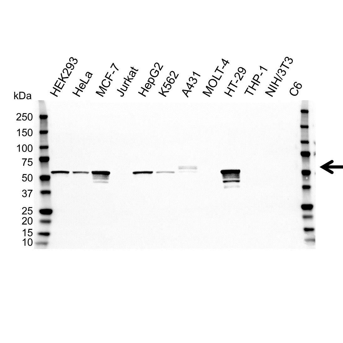 Anti Cytokeratin 5 Antibody (PrecisionAb™ Monoclonal Antibody) gallery image 1