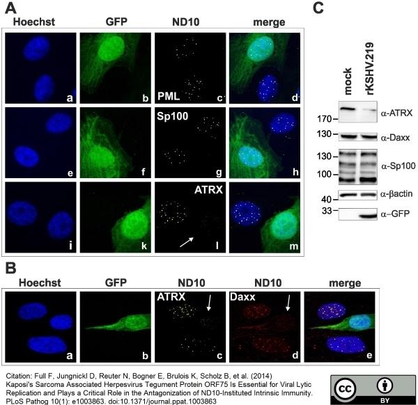 Anti Human DAXX Antibody, clone DAXX-01 thumbnail image 1