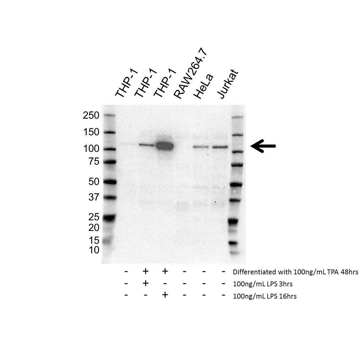 Anti DDX58 Antibody (PrecisionAb™ Monoclonal Antibody) gallery image 1
