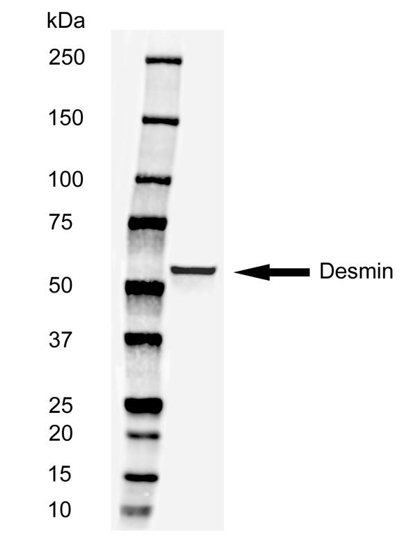 Anti Human Desmin Antibody, clone AbD03744 thumbnail image 2