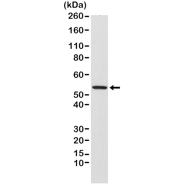 Anti Desmin Antibody, clone RM234 thumbnail image 1