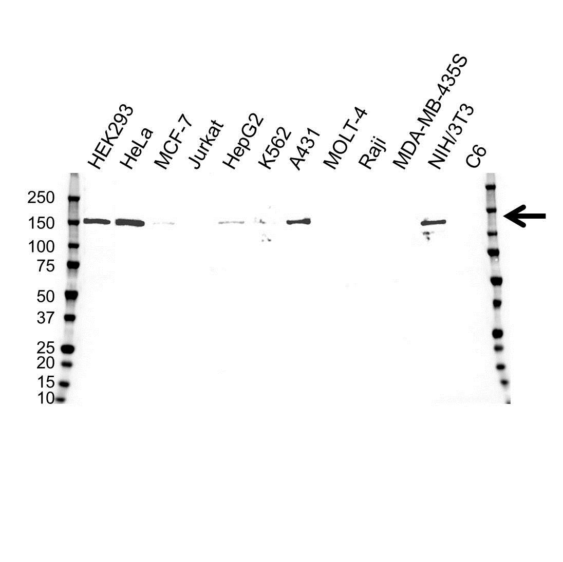 Anti Desmoglein 2 Antibody, clone 10D2 (PrecisionAb™ Monoclonal Antibody) gallery image 1