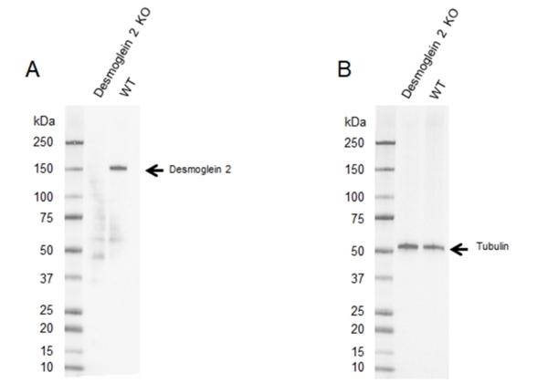 Anti Desmoglein 2 Antibody, clone 10D2 (PrecisionAb Monoclonal Antibody) thumbnail image 2