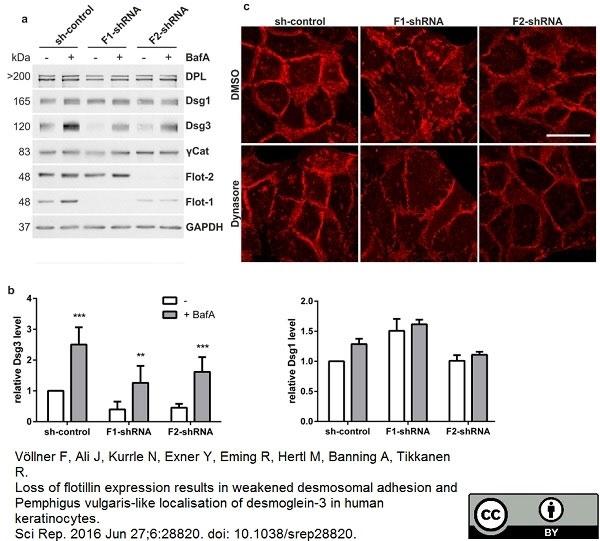 Anti Human Desmoglein 3 Antibody, clone 5G11 thumbnail image 5