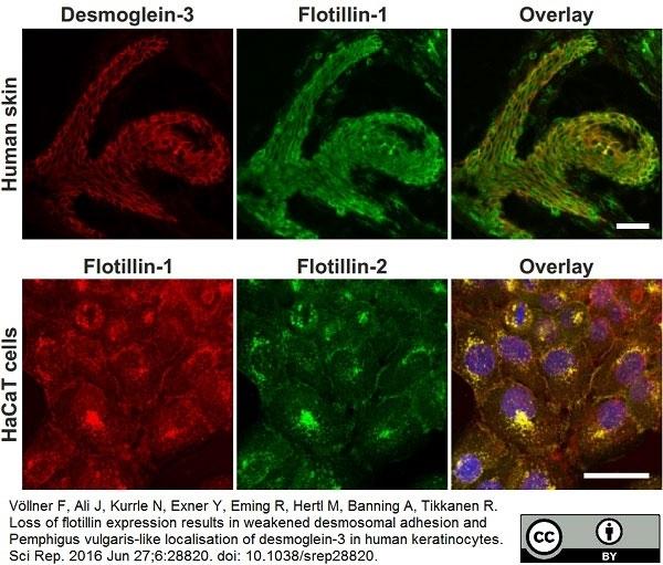 Anti Human Desmoglein 3 Antibody, clone 5G11 thumbnail image 7