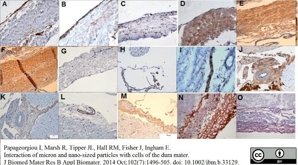 Anti Desmoplakin 1/2 Antibody, clone DP-2.15 thumbnail image 2