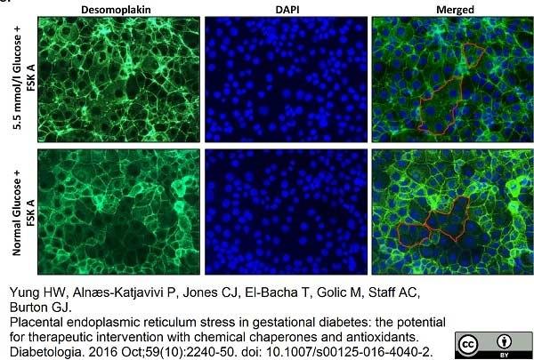Anti Desmoplakin 1/2 Antibody, clone DP-2.15 thumbnail image 3