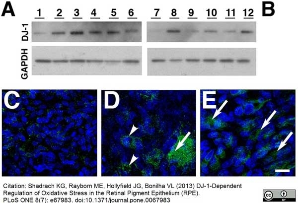 Anti Human DJ-1 (Oxidized At C106) Antibody, clone AbD03055 gallery image 3