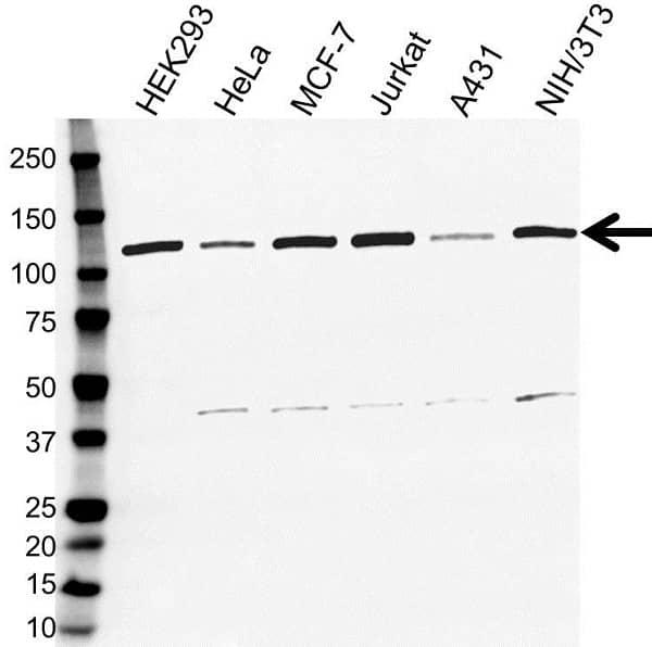 Anti E3 UBIQUITIN-PROTEIN Ligase CBL Antibody (PrecisionAb Monoclonal Antibody) gallery image 1