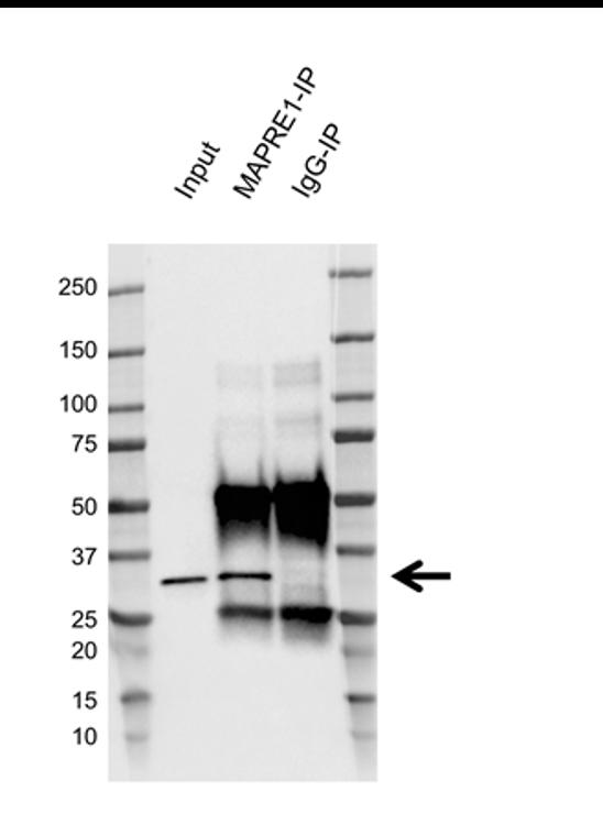 Anti EB1 Antibody, clone AB03/4B6 (PrecisionAb Monoclonal Antibody) thumbnail image 2