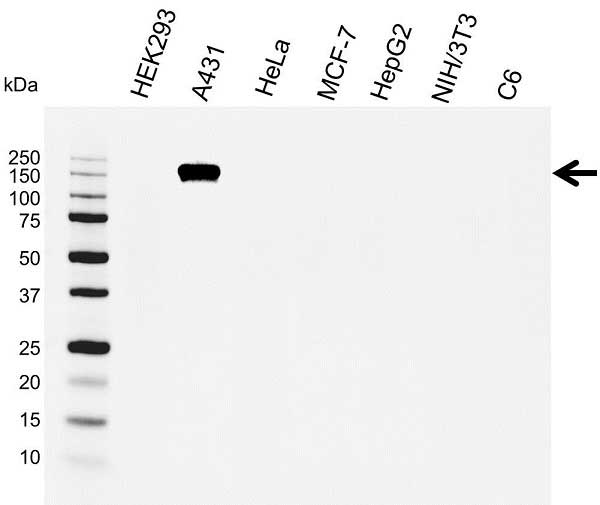 Anti EGF Receptor Antibody (PrecisionAb™ Monoclonal Antibody) thumbnail image 1