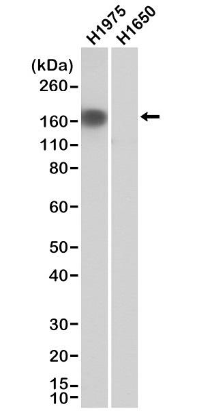 Anti EGF R (L858R Mutant) Antibody, clone RM380 thumbnail image 1