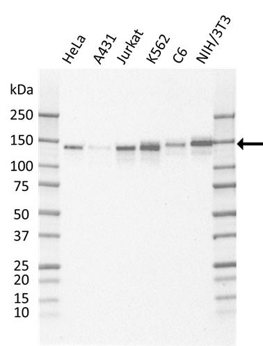 Anti EPS15 Antibody, clone CD01/1C2 gallery image 1