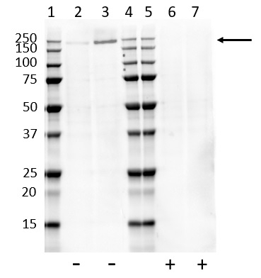 Anti ErbB2 (pTyr1112) Antibody, clone AbD33799 gallery image 1