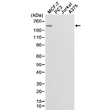 Anti ErbB2 Antibody, clone RM228 thumbnail image 1