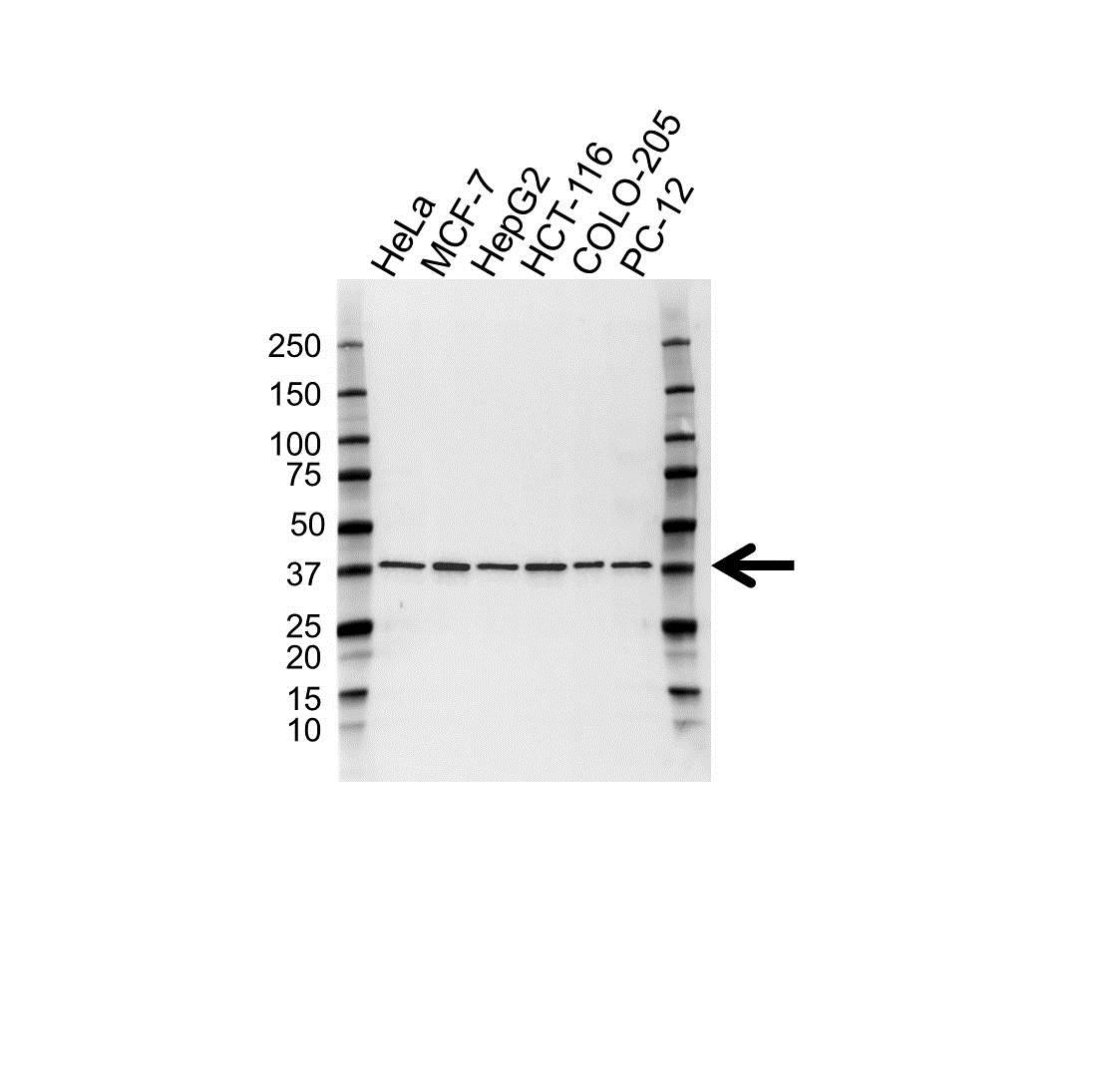 Anti ERCC1 Antibody, clone OTI1H1 (PrecisionAb Monoclonal Antibody) gallery image 1