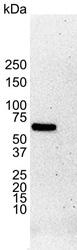 Anti Human Estrogen Receptor Alpha Antibody, clone 6F11 thumbnail image 1