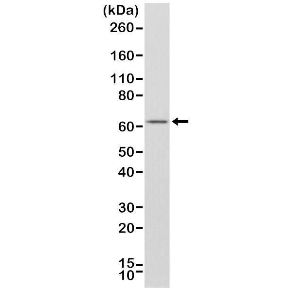 Anti Estrogen Receptor Alpha Antibody, clone RM292 thumbnail image 1