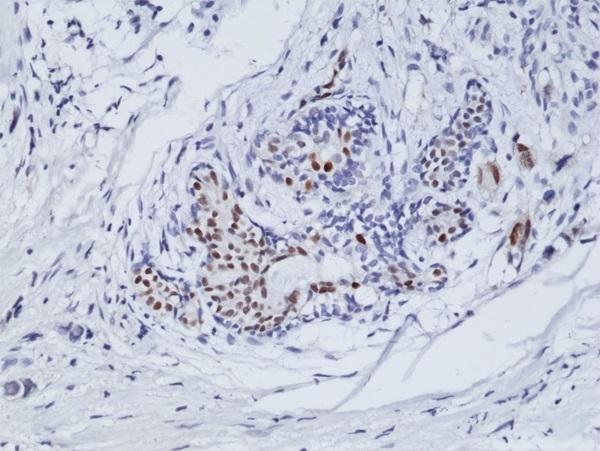Anti Estrogen Receptor Alpha Antibody, clone RM292 thumbnail image 2