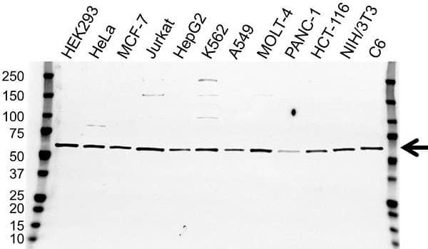 Anti Estrogen Receptor Alpha Antibody (PrecisionAb Monoclonal Antibody) gallery image 1