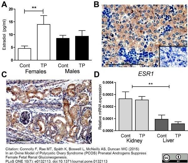 Anti Human Estrogen Receptor Beta 1 Antibody, clone PPG5/10 thumbnail image 10