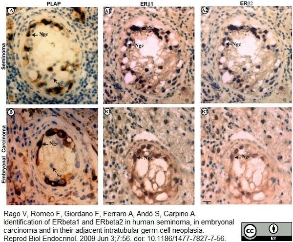Anti Human Estrogen Receptor Beta 1 Antibody, clone PPG5/10 thumbnail image 15
