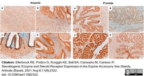 Anti Human Estrogen Receptor Beta 1 Antibody, clone PPG5/10 thumbnail image 19