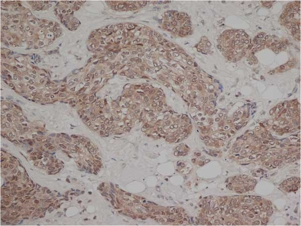 Anti Human Estrogen Receptor Beta 1 Antibody, clone PPG5/10 thumbnail image 3