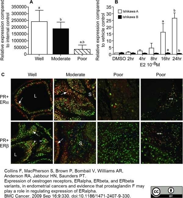 Anti Human Estrogen Receptor Beta 1 Antibody, clone PPG5/10 thumbnail image 9
