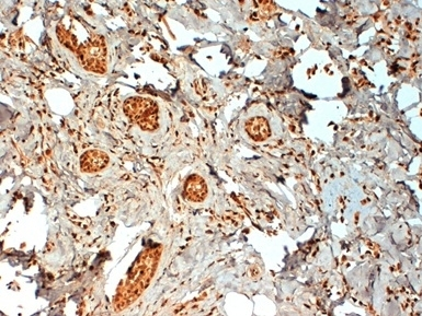 Anti Human Estrogen Receptor Beta 2 Antibody, clone 57/3 thumbnail image 1