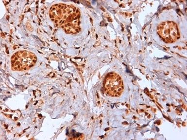 Anti Human Estrogen Receptor Beta 2 Antibody, clone 57/3 thumbnail image 2