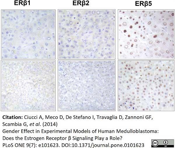 Anti Human Estrogen Receptor Beta 2 Antibody, clone 57/3 thumbnail image 5