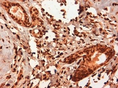 Anti Human Estrogen Receptor Beta 5 Antibody, clone 5/25 thumbnail image 2