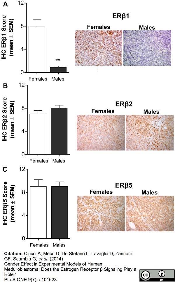 Anti Human Estrogen Receptor Beta 5 Antibody, clone 5/25 thumbnail image 4